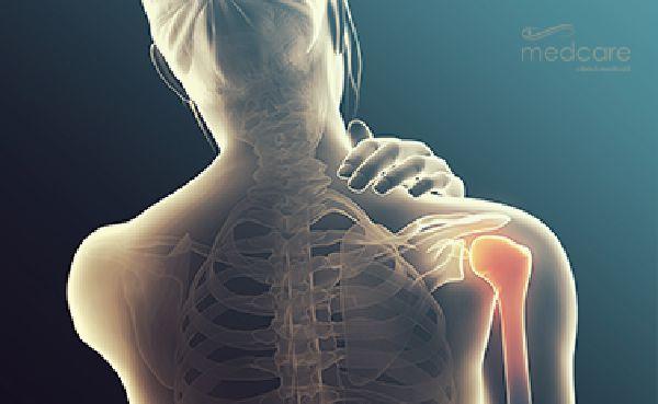 Tratamentul de kinetoterapie al cotului reumatic